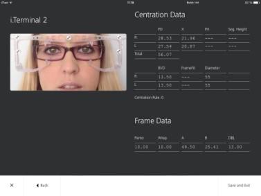 Saadud andmed kantakse koheselt üle ZEISS i.Com mobile`ile edasisteks andmete töötlemiseks